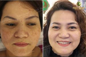 Hình ảnh khách hàng điều trị nám tại Thùy Dung