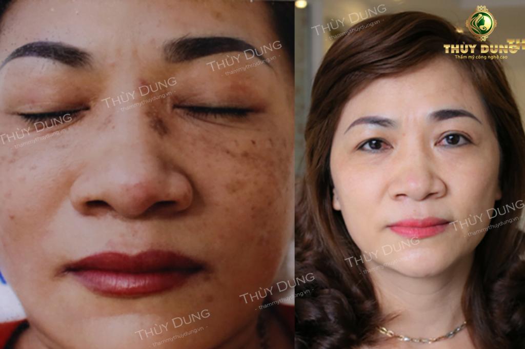 Hình ảnh khách hàng trước và sau điều trị nám