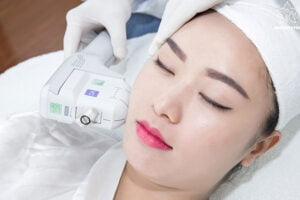 Trẻ hóa da bằng công nghệ Laser