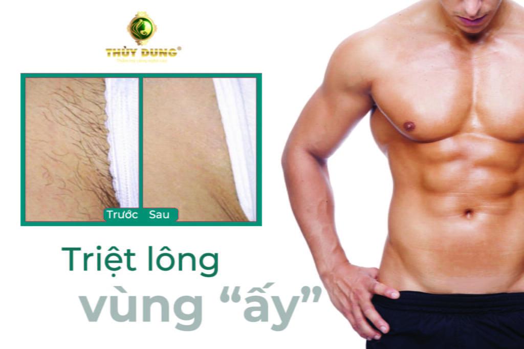 triet-long-vung-bikini-nam