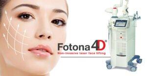 Điều trị thâm mắt bằng Laser fotona 4D